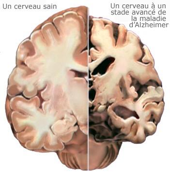 4 Cerveau sain et cerveau Alzheimer